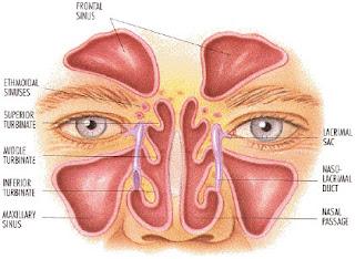 Cara Mengobati Radang Radang Selaput Lendir Hidung (Sinusitis)