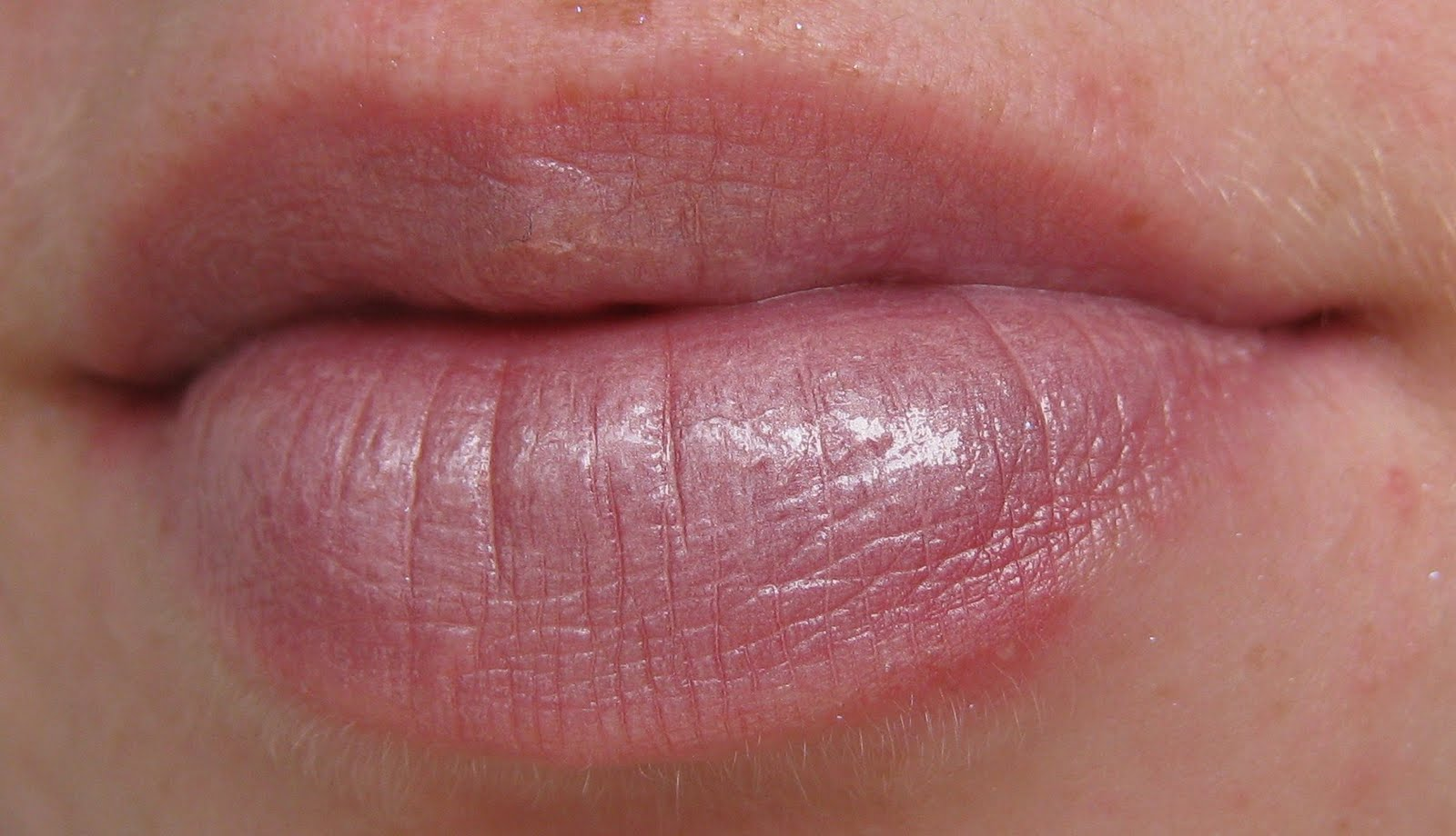 how to avoid lip herpes