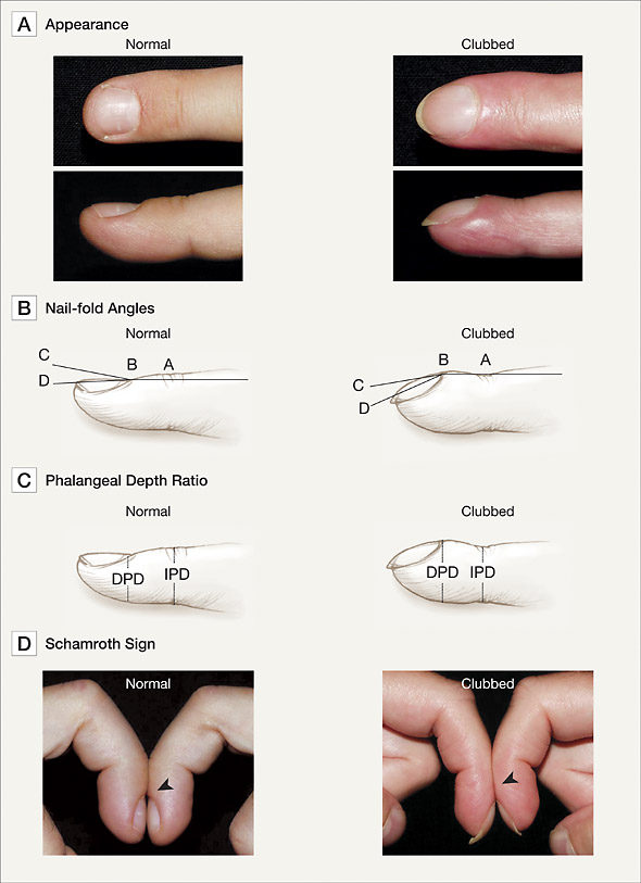 Ayche #YSM, Nail clubbing, also known as digital clubbing, is...