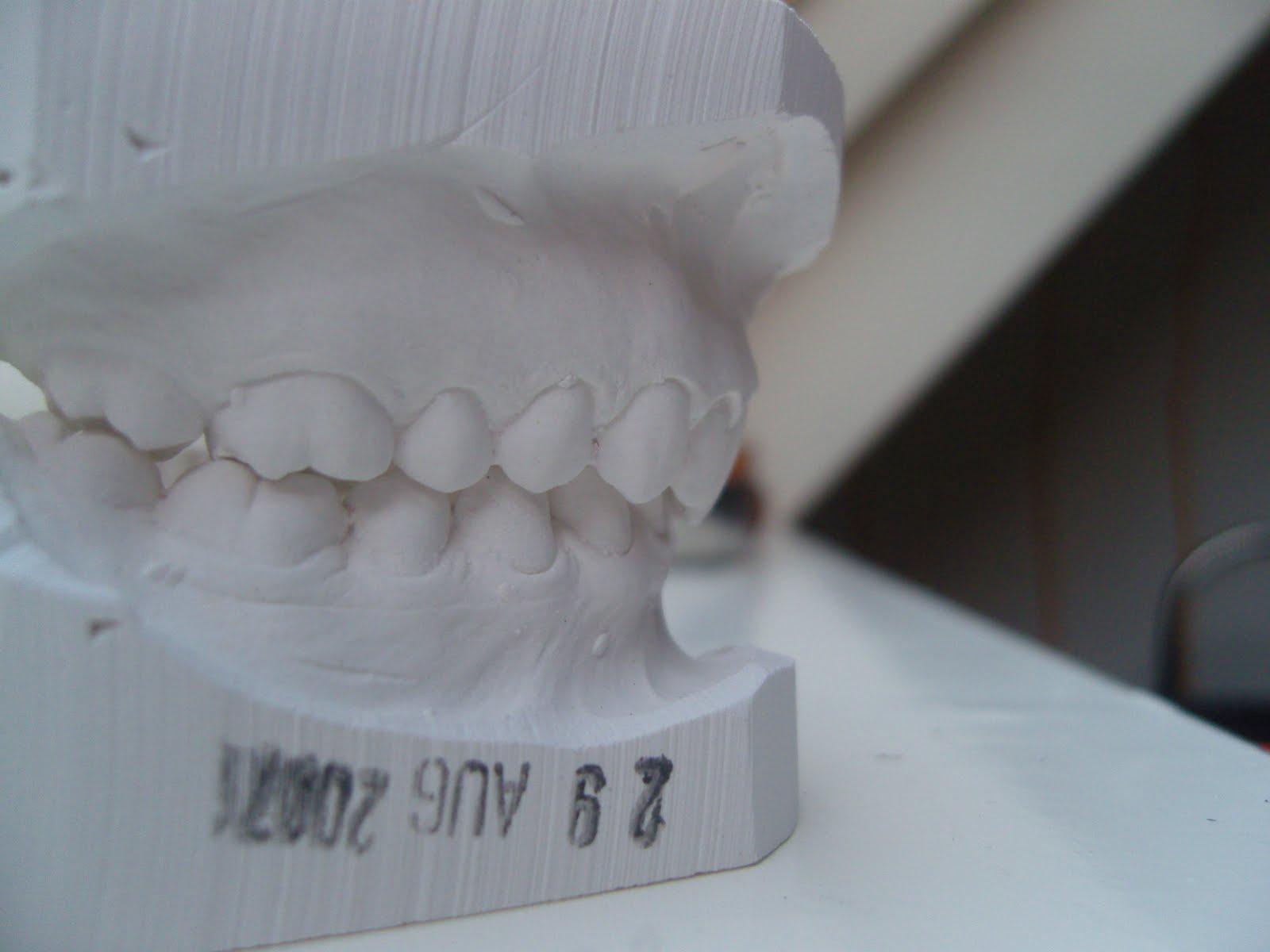 tanden kiezen ophogen