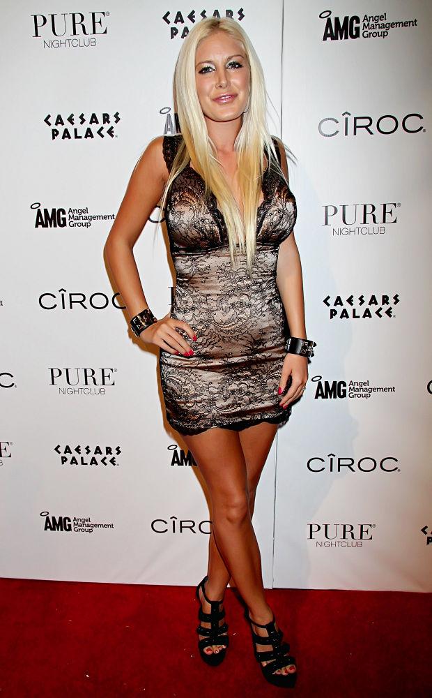 heidi montag scars. Reality TV star Heidi Montag