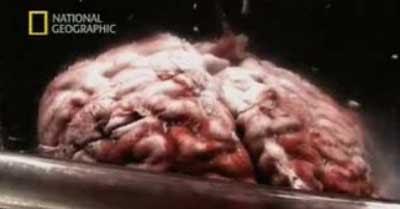 Sampel Jaringan Otak Einstein …