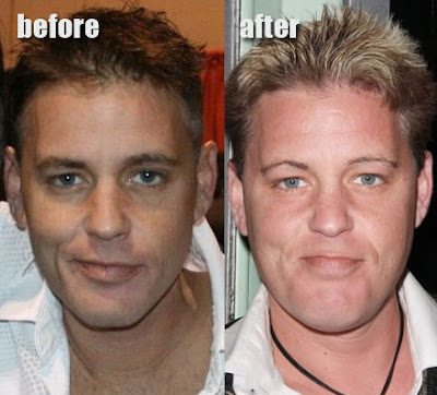 Corey Haim Before and After Cosmetic Surgery