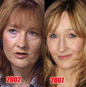 J.K. Rowling Before and After Plastic Surgery
