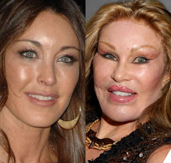 Real Catwoman Jocelyn Wildenstein and Tamara Mellon
