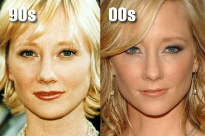 Anne Heche Before and After Plastic Surgery Picture