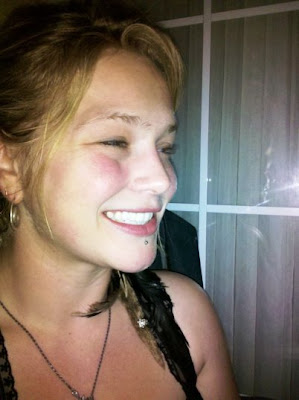 Crystal Bowersox Newly Fixed Teeth