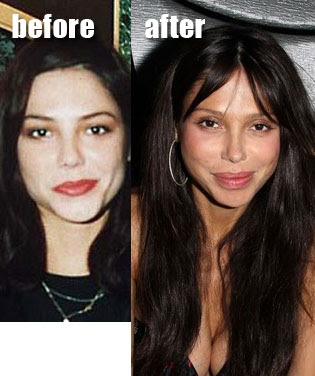 Oksana Grigorieva Before And After Cosmetic Surgery