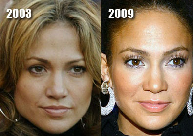Jennifer Lopez Before and After Cosmetic Surgery