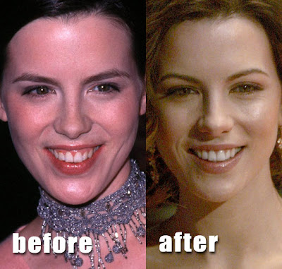 Kate Beckinsale Before and After Cosmetic Surgery