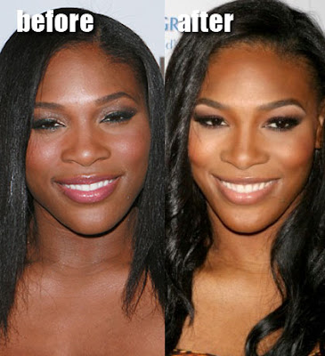 Serena Williams Before and After Cosmetic Surgery