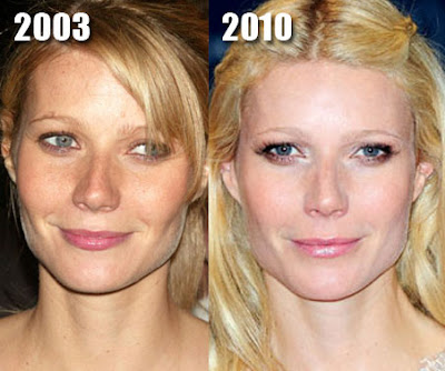 Gwyneth Paltrow Before and After Cosmetic Surgery