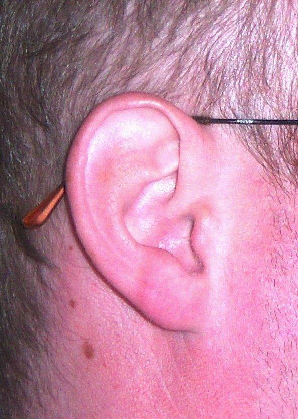 stephen colbert ear deformity. stephen colbert ear deformity.