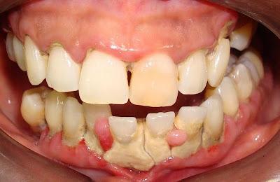 tártaro nos dentes