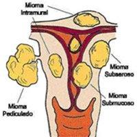 ¿Qué es una fibromatosis uterina?