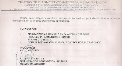 Fibroadenomas de mama - geosaludcom