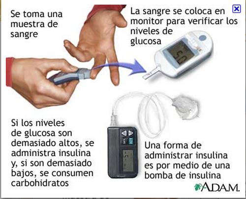 Diabetes lucha diaria: ¿Sube tu nivel de glucosa