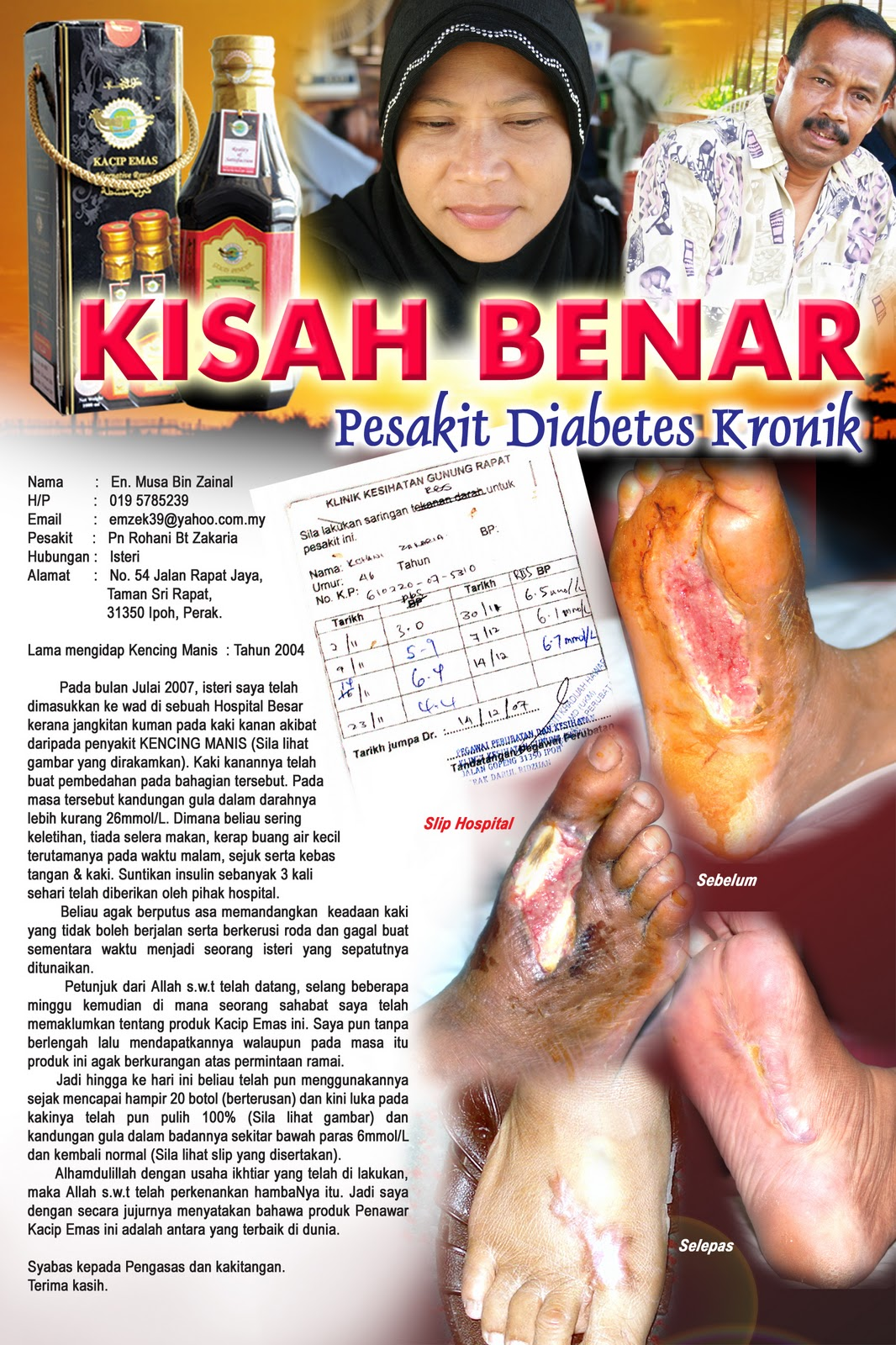 tanda penyakit kencing manis