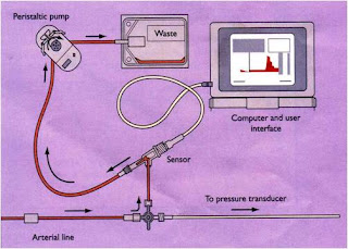 A Line Arterial Monitoring : Close up of medical monitor with ecg ventricular tachycardia