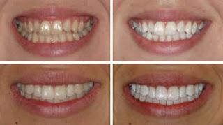 Branqueamento Dentario Branqueamento Dentario