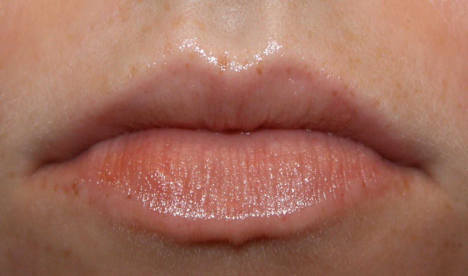 Allergic reaction to lipstick