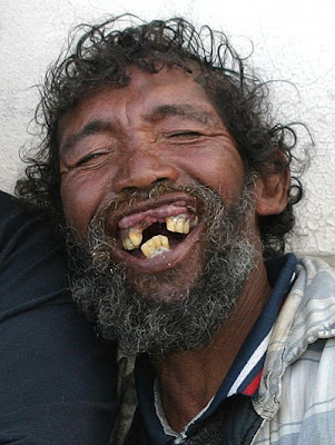 girls with rotten teeth