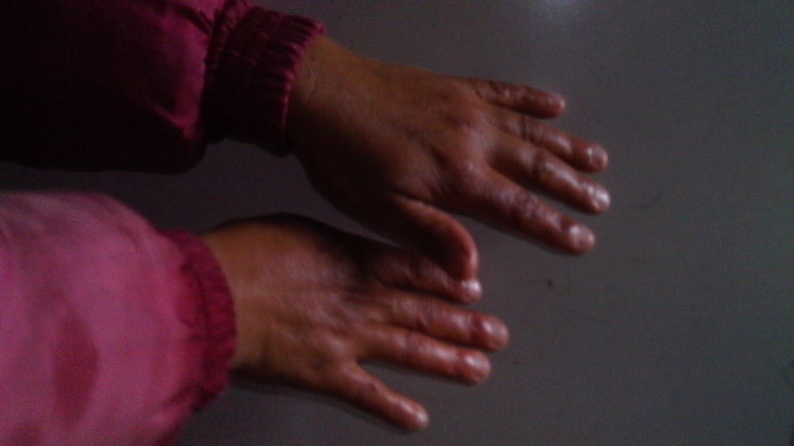 El hongo de las uñas por la intensificación