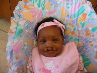 repair of cleft palate mia roberson cleft palate33 jpg did heather