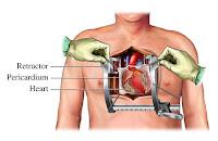 http://4.bp.blogspot.com/_zjr9tzdob1k/TUn4lnrUfAI/AAAAAAAAAgE/ekm2J3gt9Xk/s1600/bedah+jantung.jpg