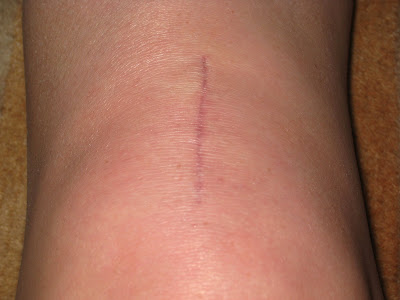 Knee Replacement Surgery Scar Tissue http://acljourney.blogspot.com/2009/05/update-remaining-milestones-26-days.html