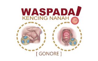Image kelamin Keluar Nanah Serta Terasa Sakit Saat Kencing