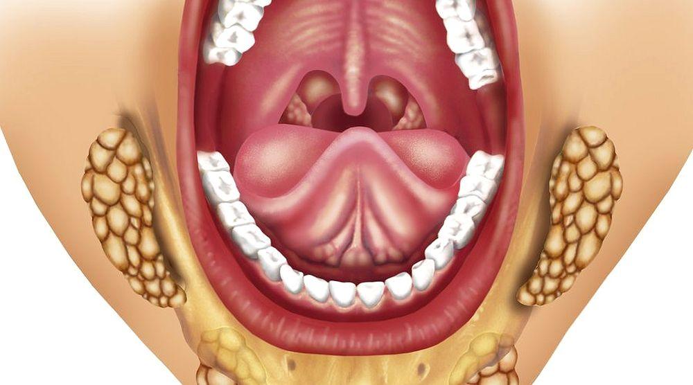 bulto debajo de la mandibula