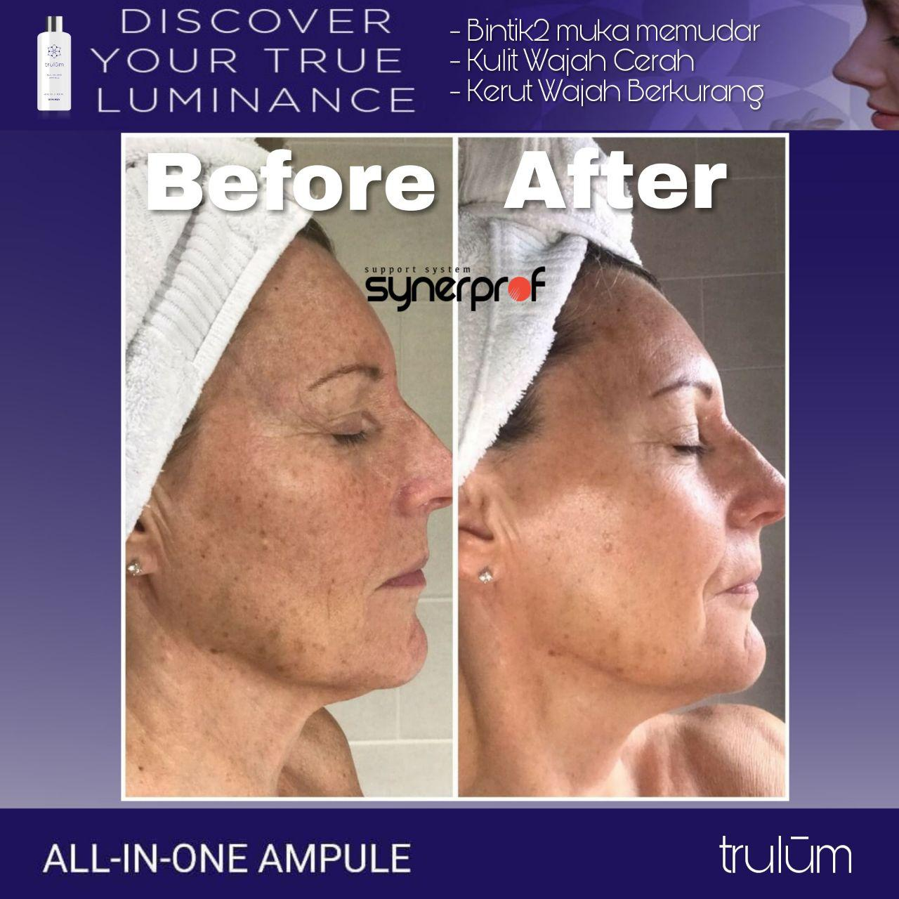 Klinik kecantikan Trulum All In One Ampoule Di Samosir