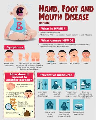 HFMD, penyakit kaki tangan dan mulut,HFDM decease,HDFM