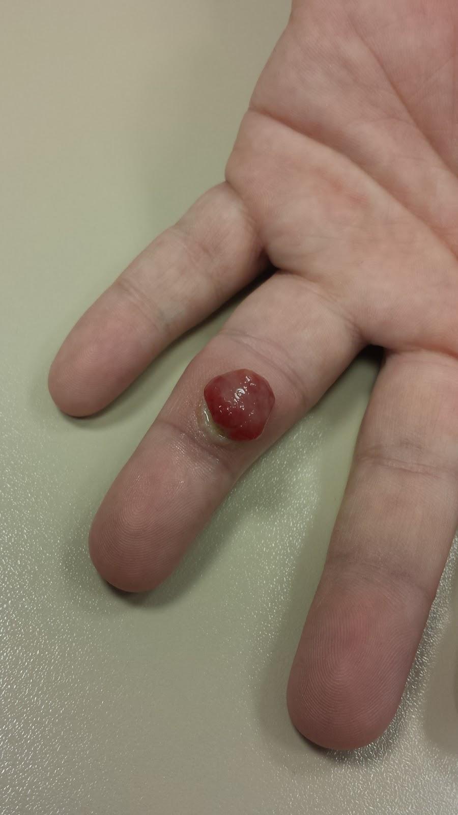 grano dedo