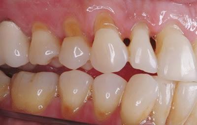 mòn chân răng có trám được không -1