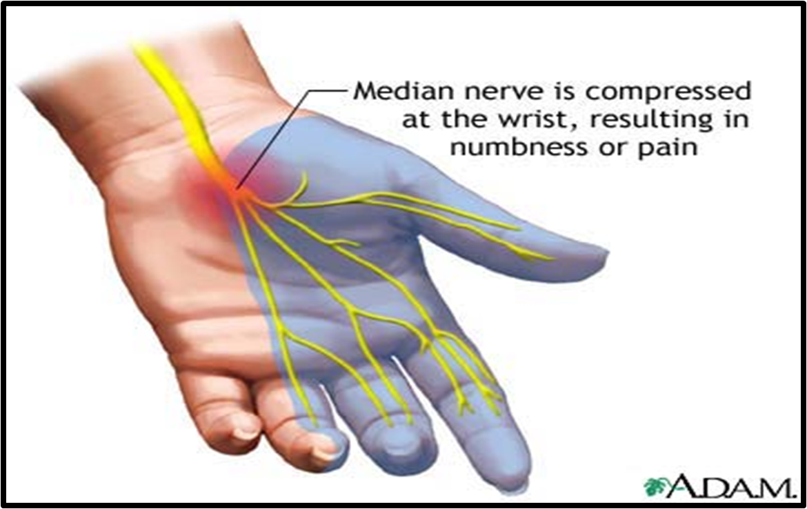 a description of carpal tunnel syndrome in hand and arm conditions What are the symptoms of carpal tunnel syndromewhat are  or sometimes  pain in the hand and wrist, or occasionally in the forearm and arm.