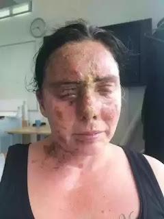 Carla Whitlock acid attack victim