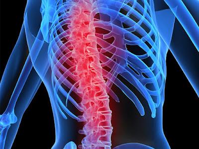 Penyebab penyakit osteoporosis