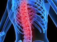 10 Penyebab Penyakit Osteoporosis