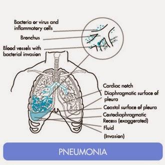 Makalah Tentang Pneumonia Pada Anak Brad Erva Doce Info