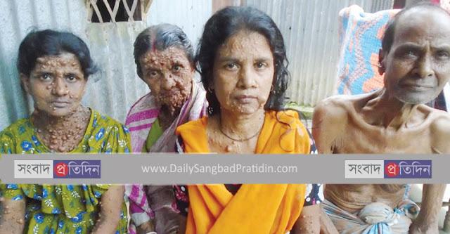 Daily-sangbad-pratidin-kurigram-peoples