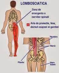 Durere prin ciupirea nervului spinal