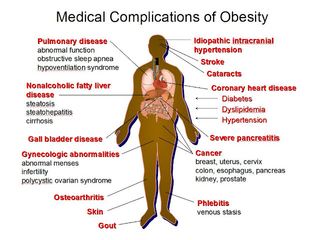 harmful-effects-Obesity