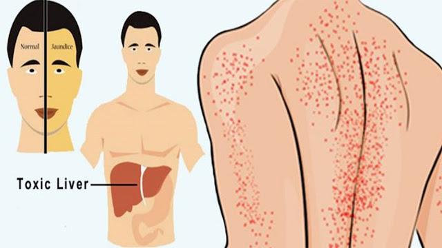 علامات تأكد لكي أنك مصابة بالتهاب الكبد يجب عليكي معرفتها #تحذير