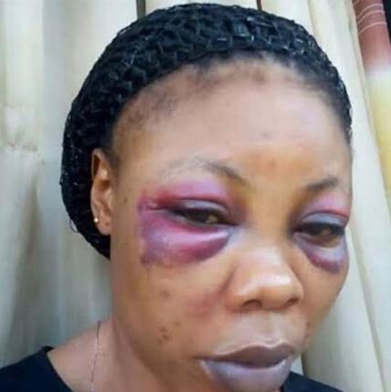 nigerian woman beaten by her husband