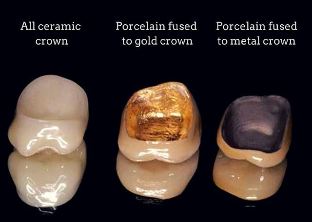 porcelain_crowns_types