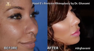 Hazel E Before And After Plastic Surgery Nose Job
