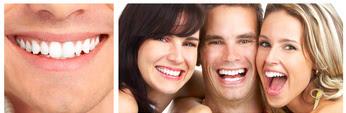 implantes de dentes
