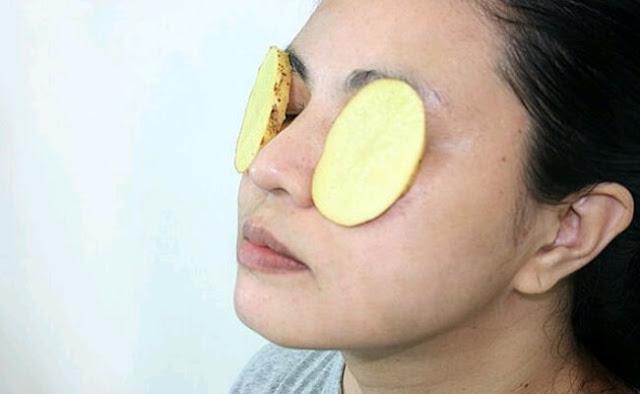 كيفية ازالة الهالات السوداء حول العين